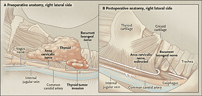 Surgical Approach to Locally Advanced Thyroid Cancer
