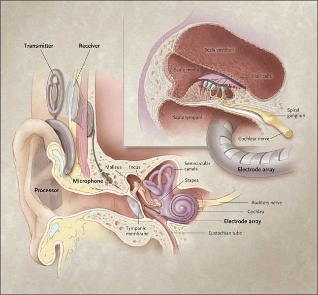 The Internal and External Components of a Cochlear Implant