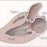 Anatomical Changes Associated with Aortic Stenosis