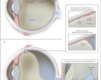 Ocular Anatomy, Posterior Vitreous Detachment, Retinal Tears, and Retinal Detachment