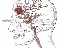 Arteriovenous Malformation Shown in Situ