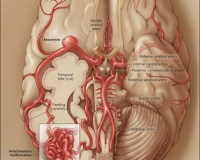 Arteriovenous Malformations in the Brain