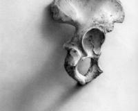 Coxal Bone