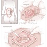 Prenatal Repair of Myelomeningocele.