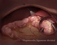 surgicalimage10