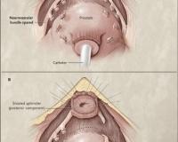 surgicalimage3