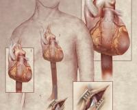surgicalimage9