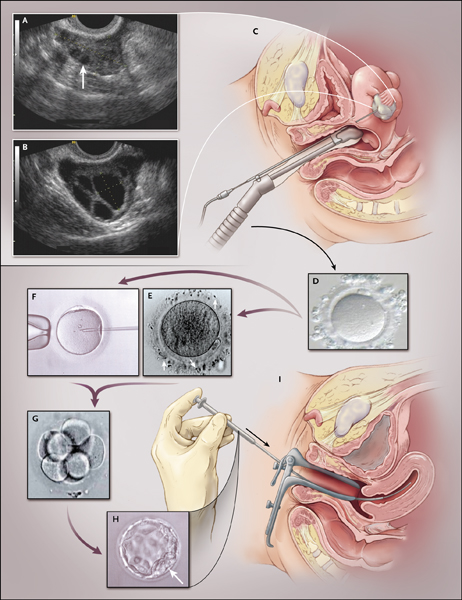 surgicalimage5