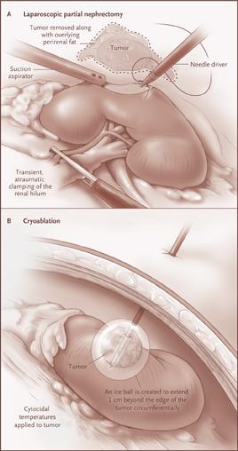 surgicalimage6
